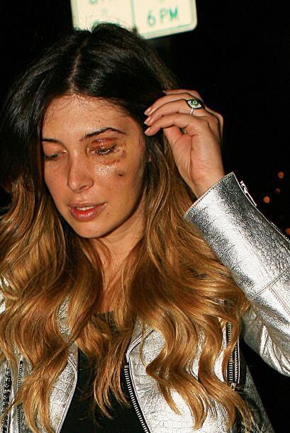 La joven de 31 años dijo que fue golpeada salvajemente y tuvo que ir al...