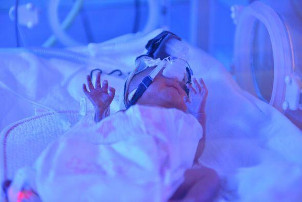 Hasta el momento, el  pronóstico de los cuatro bebés es reservado, sin e...