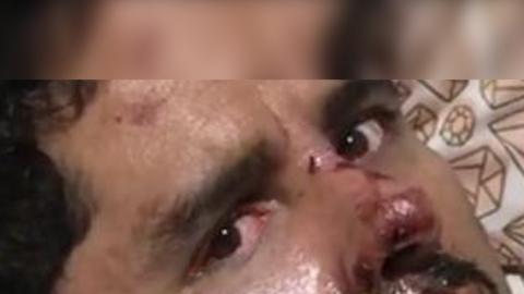 Los ojos de Larry Hernández tras accidente