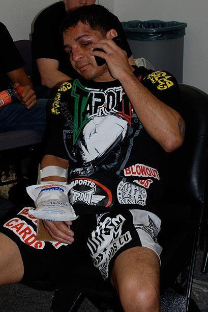 García se fracturó la mano derecha en el primer asalto.
